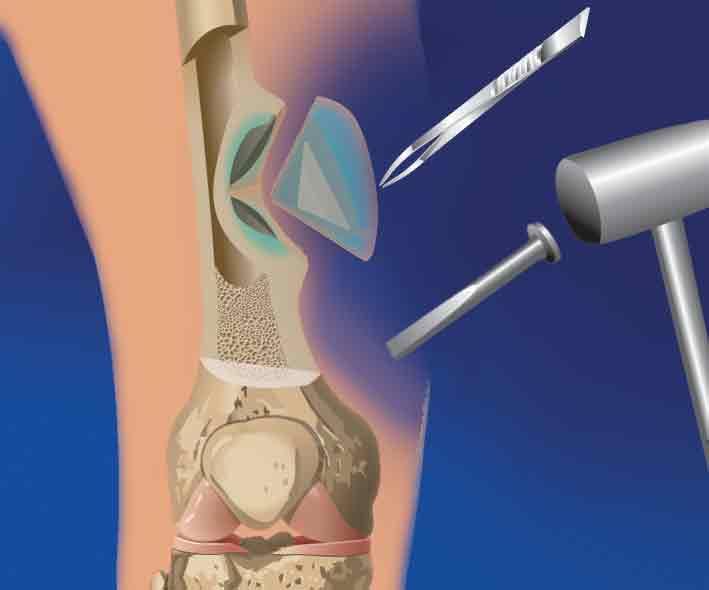 Лечение остеомелита