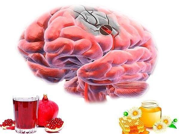 Нарушение мозгового кровообращения лечение народными средствами